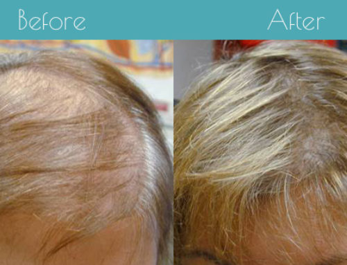 How To Stop Hair Loss: Tips From the Top Hair Loss Specialist in Charlotte, NC