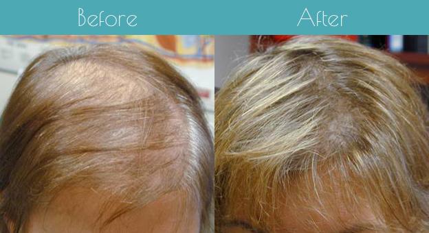 hair-loss-specialist-charlotte-nc